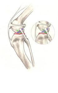 ruptured cranial cruciate ligament