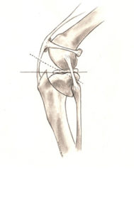 TPLO procedure on dog illustration